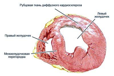 Постинфарктный кардиосклероз: причины, проявления, как избежать смерти