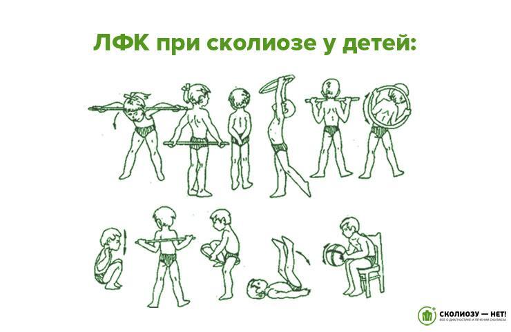 Упражнения лечебной гимнастики при кифосколиозе