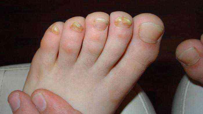 Средства от запущенного грибка ногтей для эффективного лечения