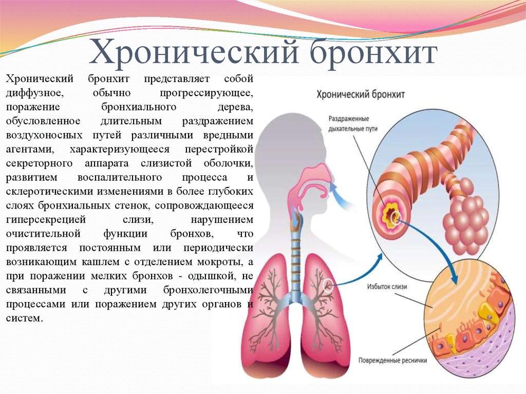 Можно ли гулять при пневмонии: польза и вред свежего воздуха для взрослых и детей