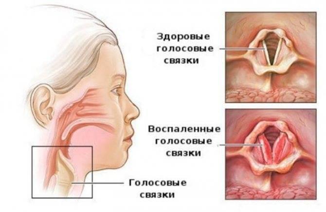 Бронхит обструктивный | симптомы | диагностика | лечение - docdoc.ru