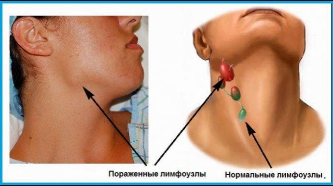 Симптомы и лечение лимфаденита