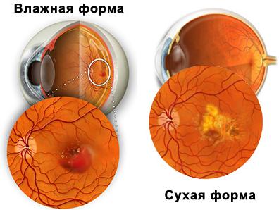 Макулодистрофия сетчатки глаза: возрастная, сухая и влажная формы макулярной дистрофии, почему повреждается макула