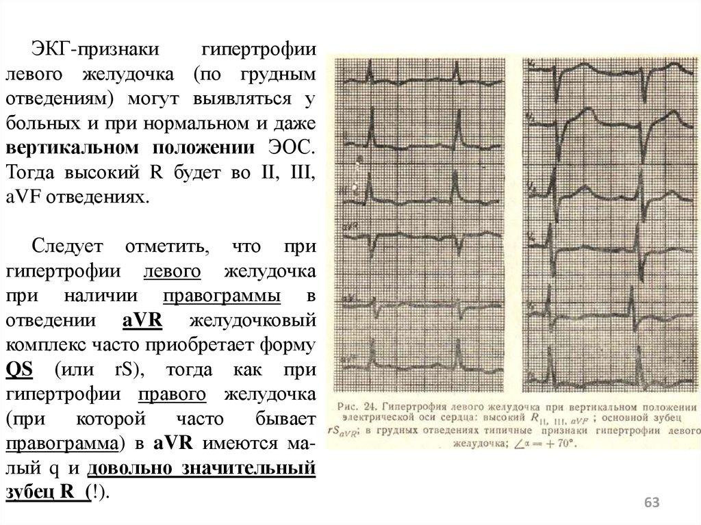 Гипертрофия правого желудочка сердца на экг. как лечить гипертрофию правого желудочка у взрослых и детей