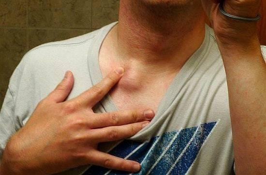 Насколько опасен туберкулез позвоночника?