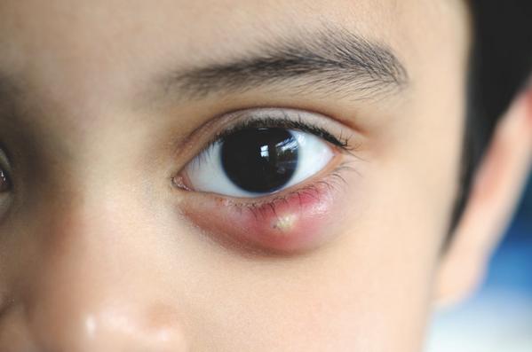 Халязион верхнего или нижнего века у ребенка: причины и лечение