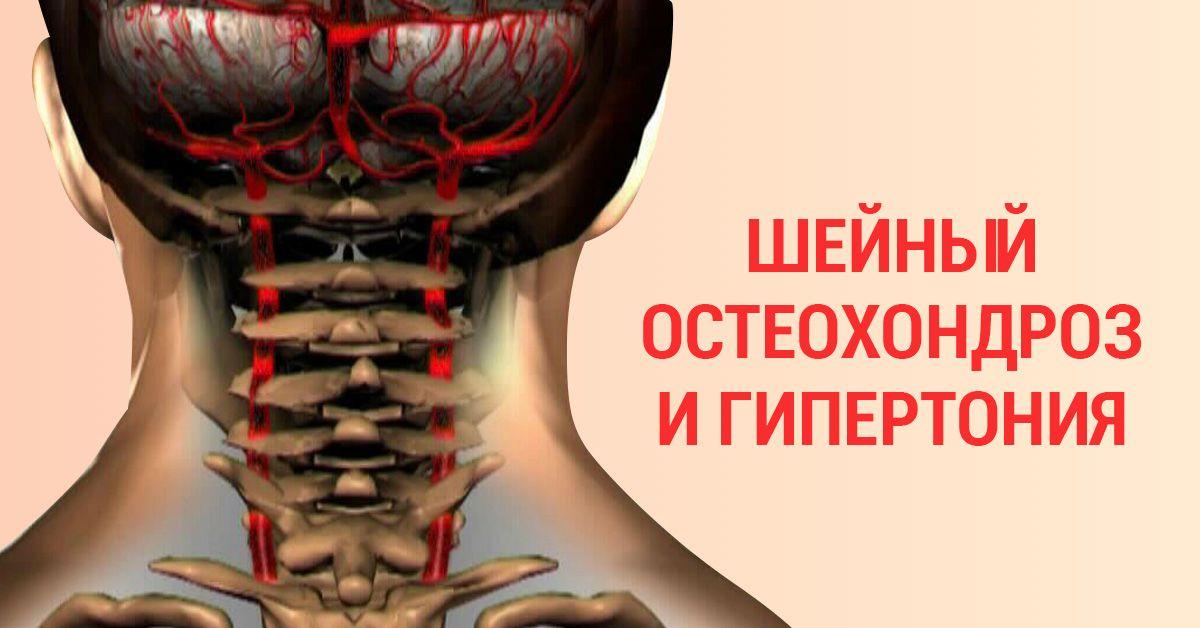 Как лечить шейный остеохондроз? остеохондроз шейного отдела позвоночника – лечение, упражнения