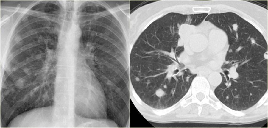 Что такое пневмофиброз легких, чем опасен, симптомы и лечение
