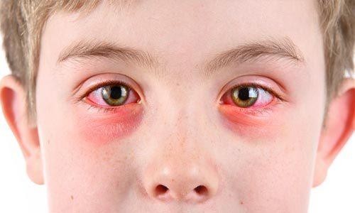 Как лечить хронический конъюнктивит у детей?