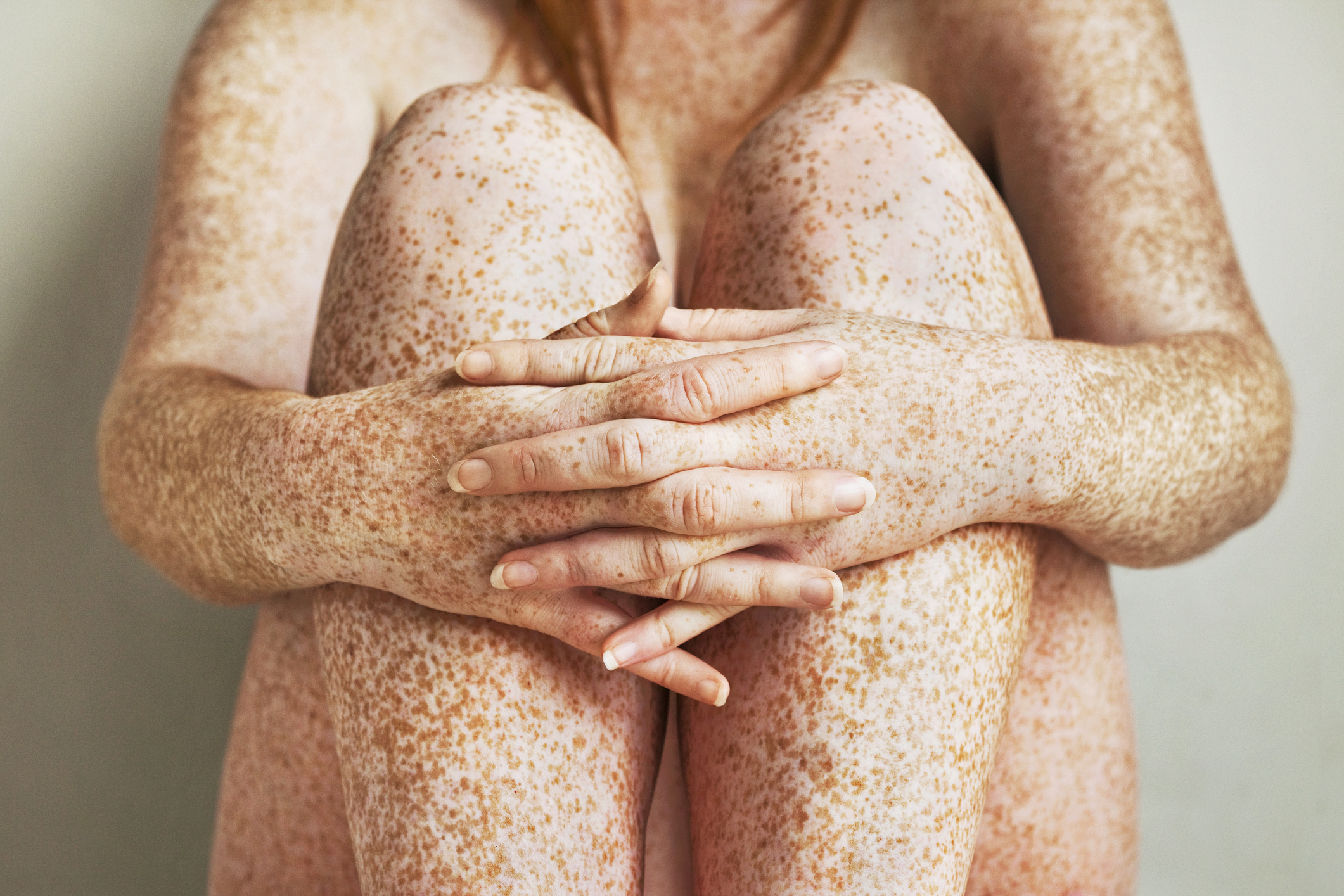 Нарушения пигментации кожи: причины, лечение, фото