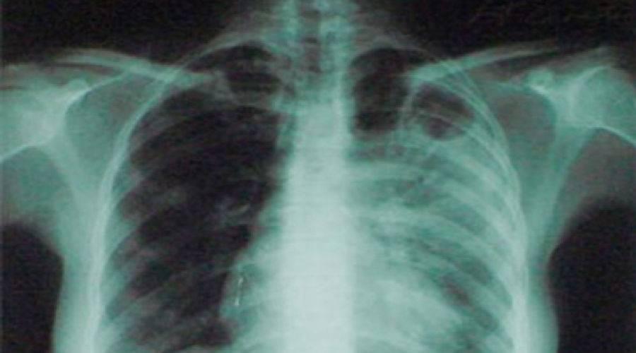 Рентген при туберкулезе: зачем проводить, показания, признаки