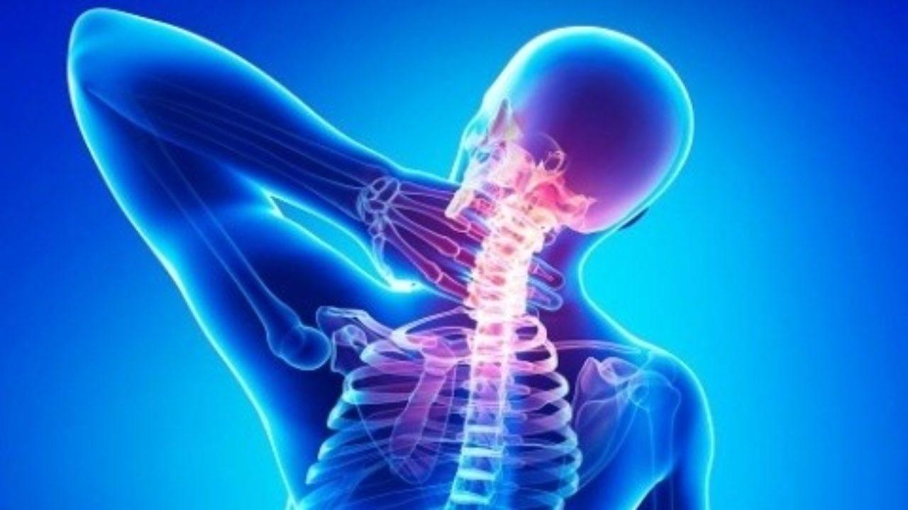 Цервикокраниалгия — причины, симптомы и лечение | все о суставах и связках
