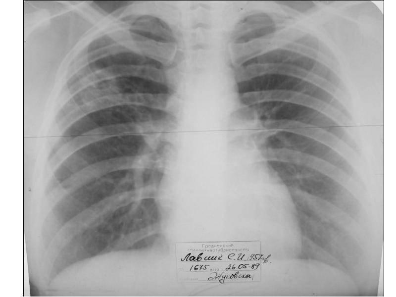 После удаления туберкулемы можно снова заболеть   загранник
