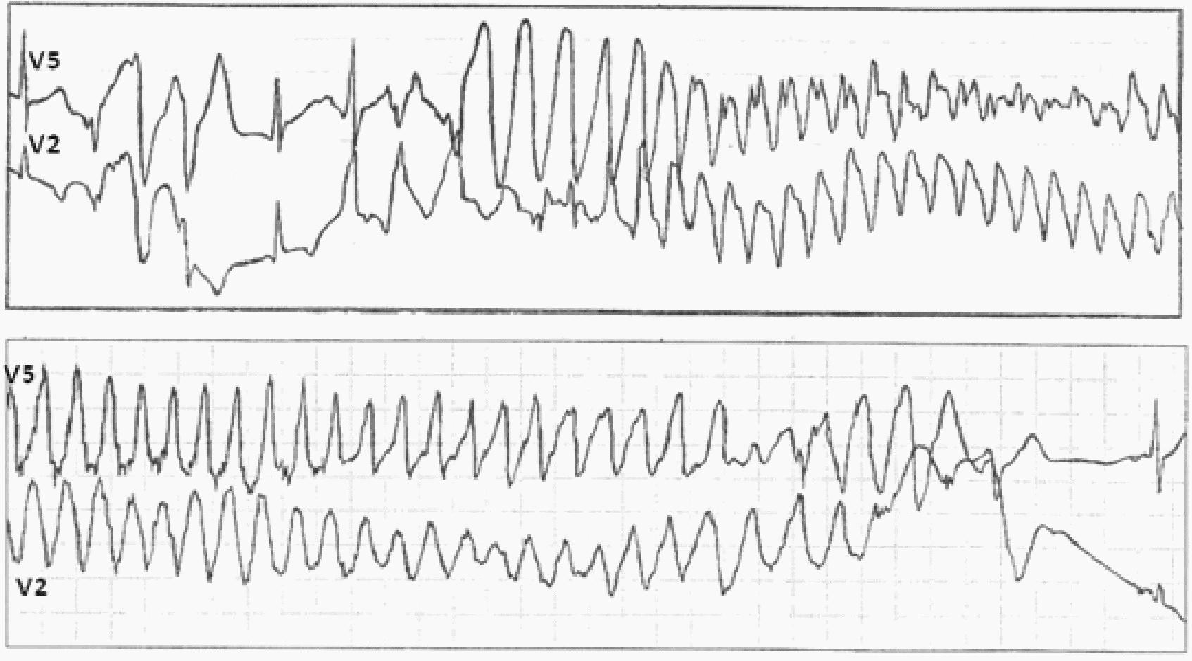 Тахикардия при синдроме wpw
