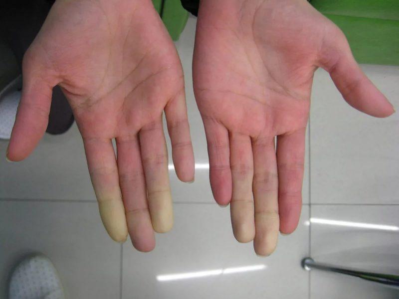 Синдром рейно: что это, причины, симптомы, диагноз, лечение