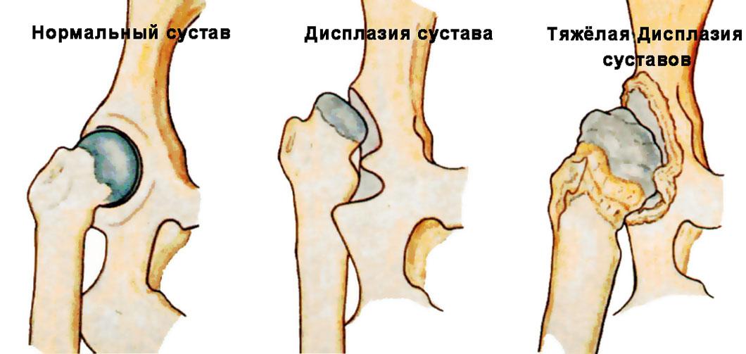 Дисплазия тазобедренных суставов у новорожденного: симптомы,лечение, полное описание заболевания