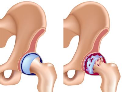 Самые эффективные упражнения при коксартрозе тазобедренного сустава