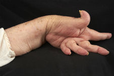 Как лечить артрит на пальцах рук, зависит от его классификации