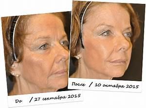 Инновационный препарат лаеннек – комплексное омоложение кожи