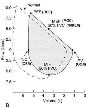 Проведение спирометрии при бронхиальной астме и расшифровка результатов