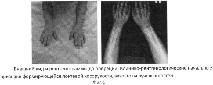 Экзостоз тазобедренной кости