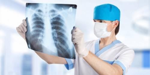 Туберкулез: как выявить на ранней стадии?