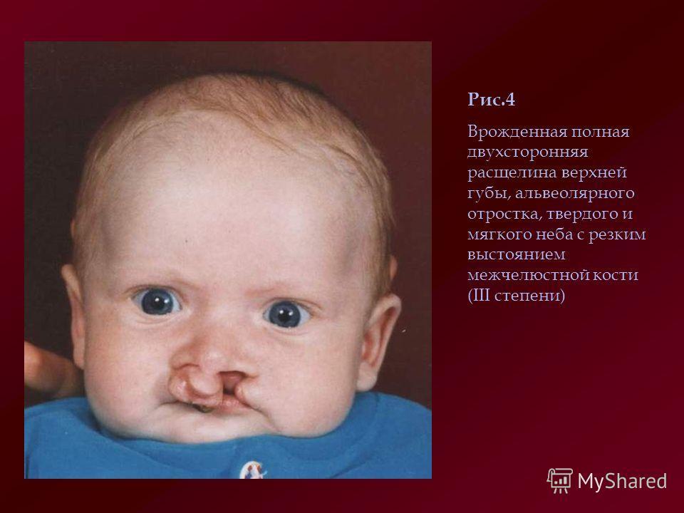 Заячья губа и волчья пасть: причины и последствия операции