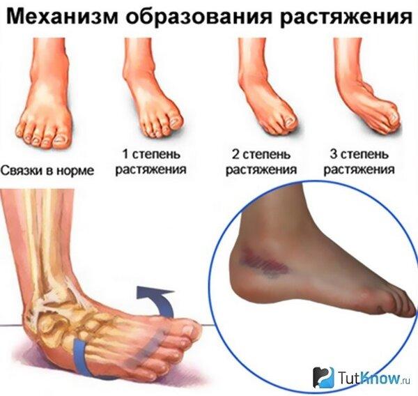 Опасен ли разрыв связок коленного сустава?