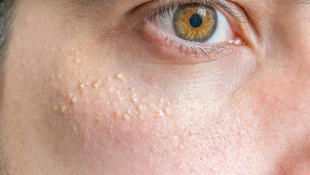 Белые угри – как избавиться, на лице, под глазами, на носу, лбу, милиумы, лечение, причины