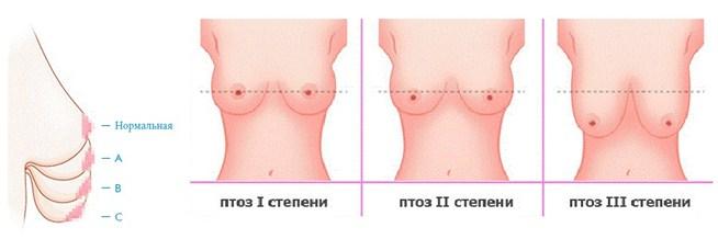 Птоз груди после лактации и кормления