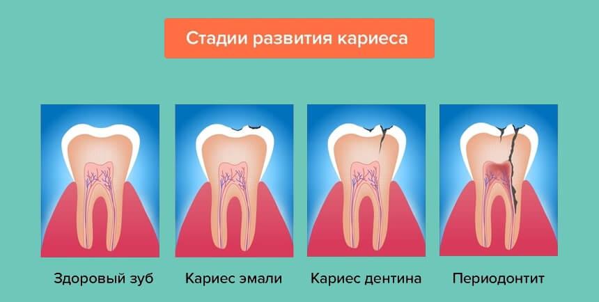 Периодонтит: симптомы и лечение острого и хронического периодонтита