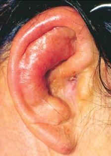 Как и чем вылечить отит уха в домашних условиях