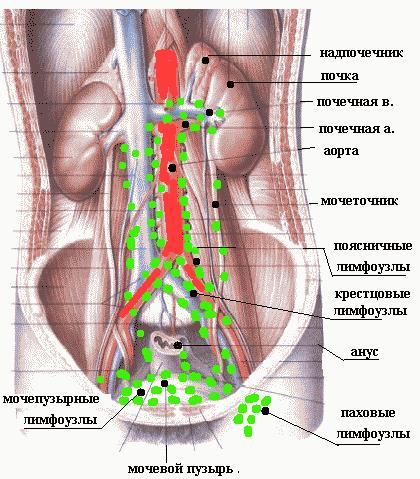 Как проявляются опухоли и метастазы в лимфоузлах брюшной полости