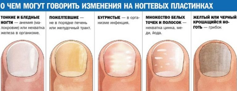 Слоятся, крошатся, ломаются ногти: почему очень тонкие ногти, лечение, что делать в домашних условиях