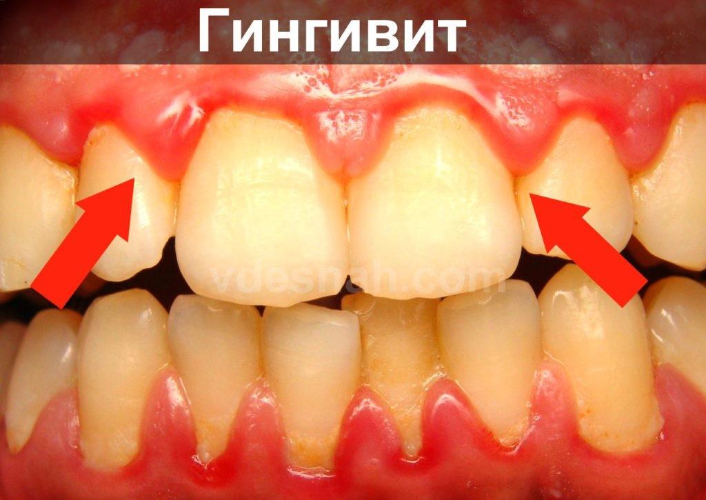 Гингивит: симптомы и лечение, фото болезни у взрослых