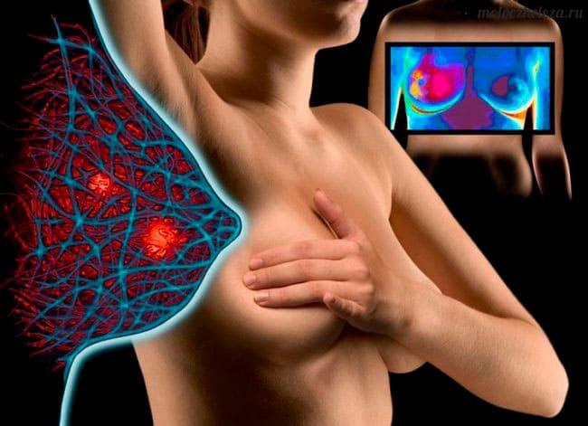 Почему перед месячными грудь набухает и сильно болит — ответ гинеколога