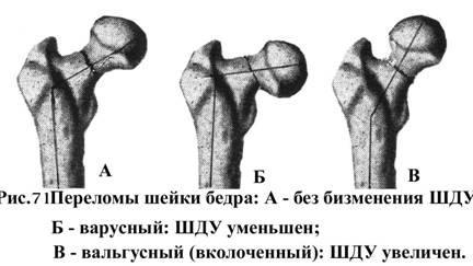 Виды переломов бедра, особенности терапии и восстановительного периоды