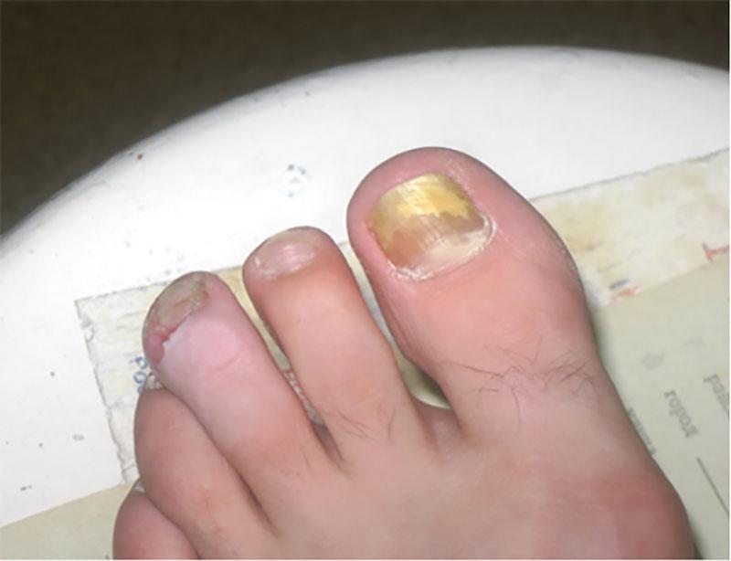 Грибковые заболевания ногтей ног и рук