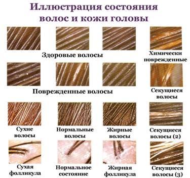 Диагностика заболеваний илечение волос