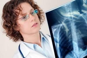 В чем особенность реабилитации у детей после пневмонии