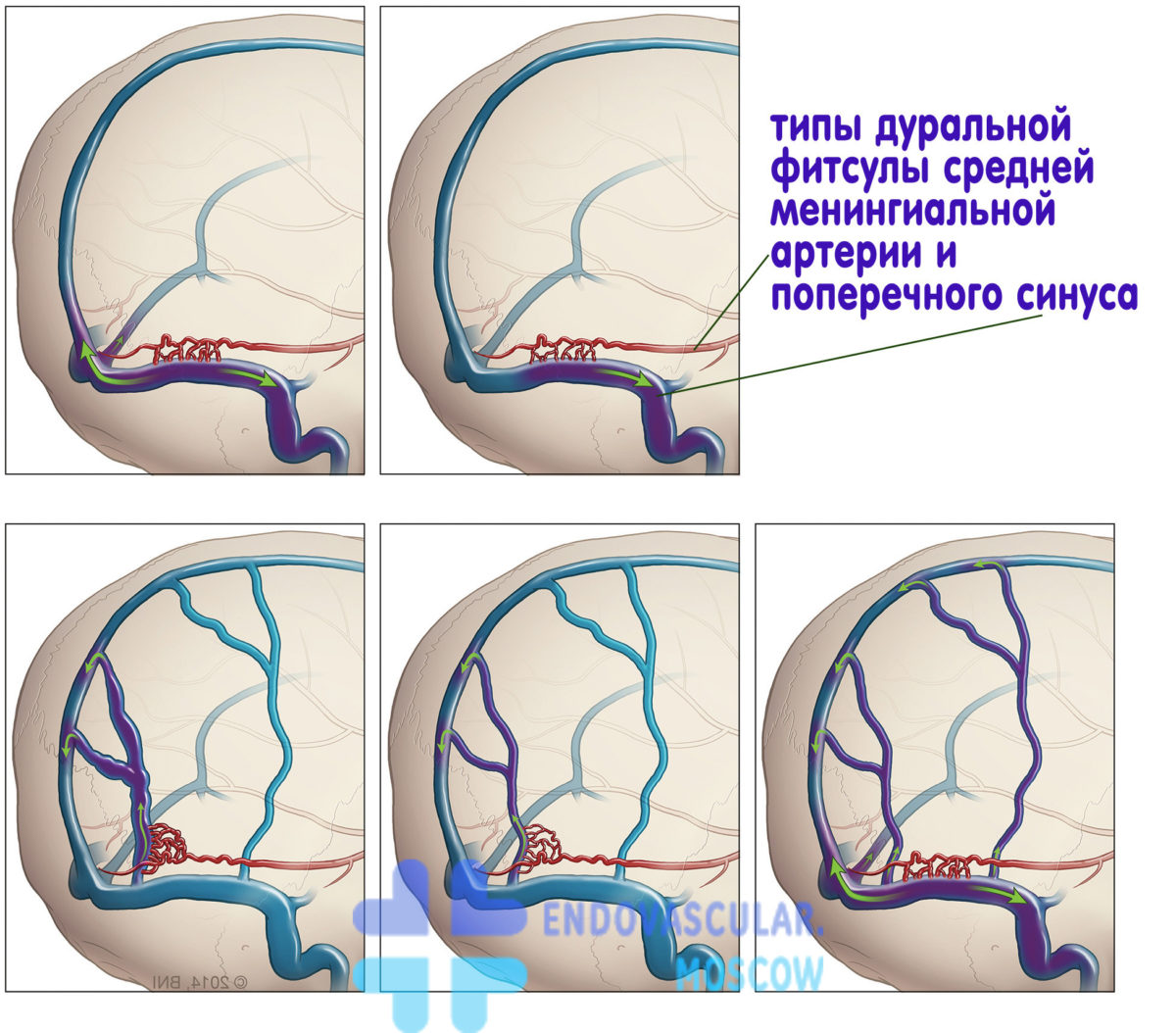 Артериовенозная фистула – симптомы, лечение, формы, стадии, диагностика