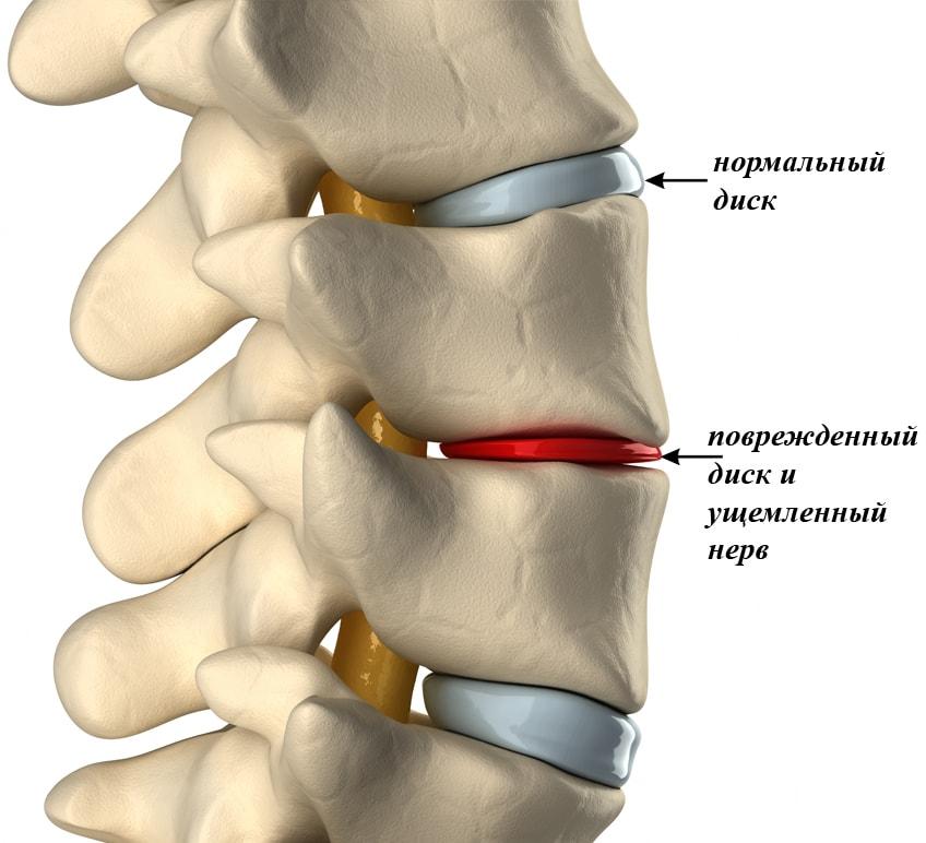 Схема медикаментозного лечения шейного остеохондроза: самые эффективные препараты для шеи