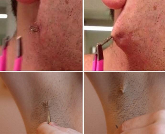 Как избавиться от вросших волос в области бикини в домашних условиях