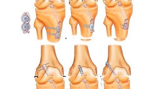 Методы лечения надрыва связок коленного сустава