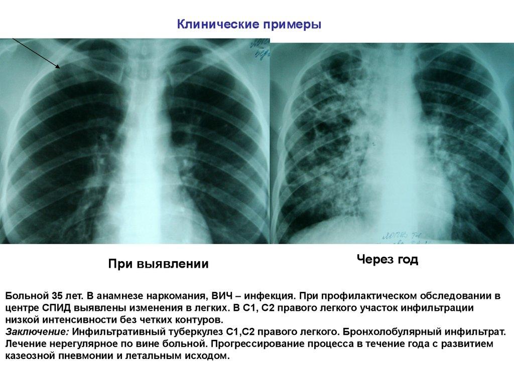 Туберкулез: формы, проявления, признаки