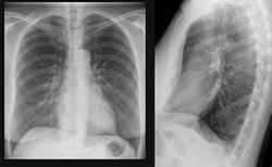 Как выглядит туберкулез на рентгеновском снимке у взрослых и детей
