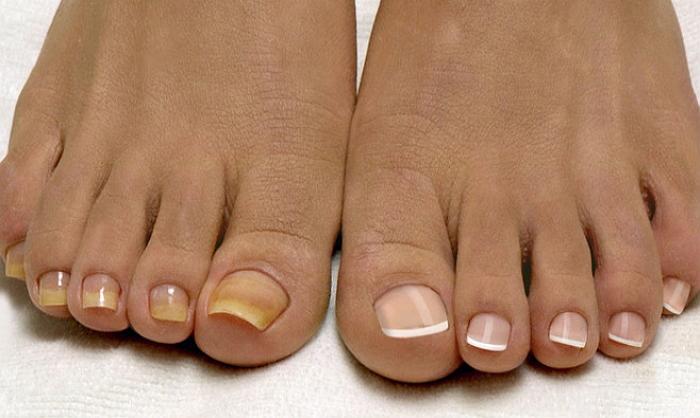 Грибок на пальцах ног: симптомы, как и чем лечить
