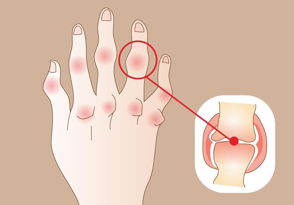Ревматоидный артрит: причины и механизм развития, симптомы, диагностика, лечение