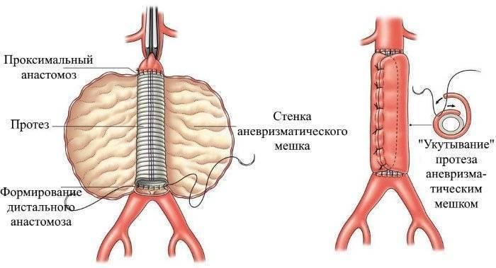 Аневризма аорты брюшной полости: симптомы и причины, диагностика, лечение и прогноз жизни