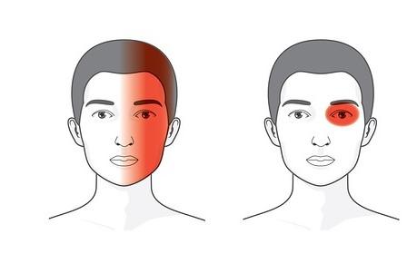 Головная боль в области лба и глаз: как справиться